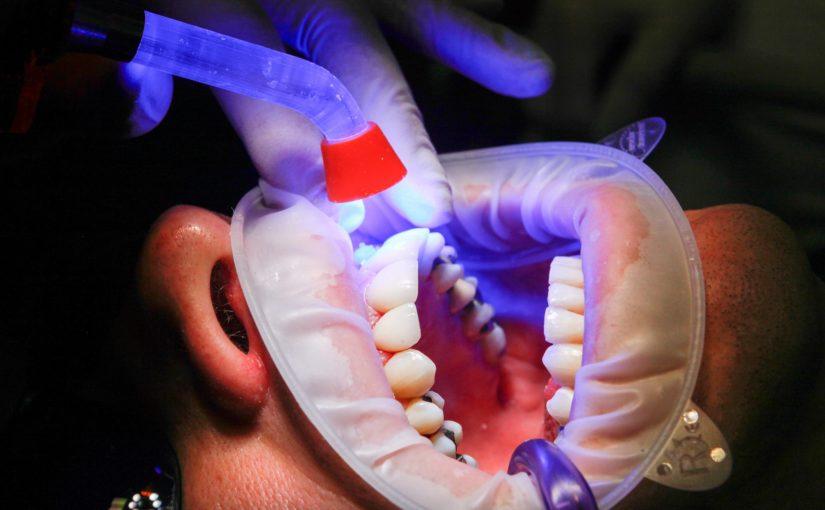 Złe postępowanie żywienia się to większe ubytki w zębach a dodatkowo ich brak